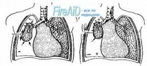 Закрытая травма грудной клетки