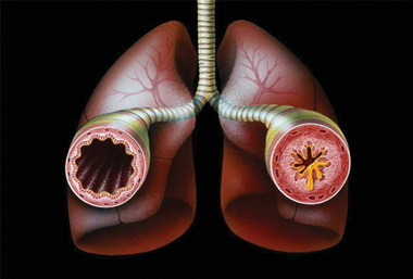III стадия астмы