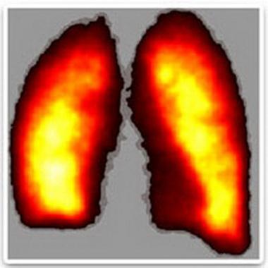 Преждевременное закрытие дыхательных путей во время выдоха