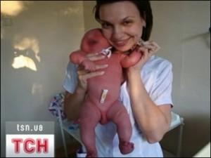 В Днепропетровске две медсестры устроили скандальную фотосессию с недоношенными младенцами