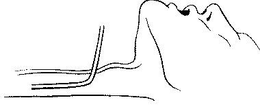 Чрескожная катетеризация трахеи