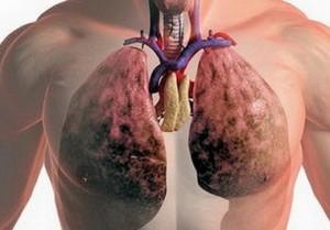 Проходимость дыхательных путей