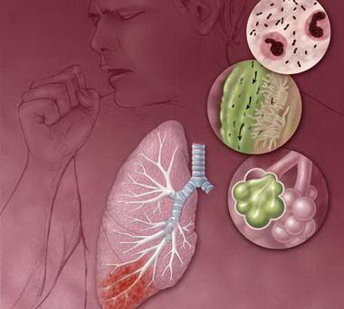 Лечение пневмоний