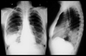 Профилактика пневмоний