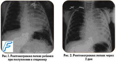 ИВЛ при пневмониях