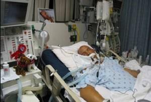 Клинические признаки острой дыхательной недостаточности