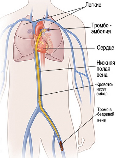 Замена нормального самостоятельного дыхания